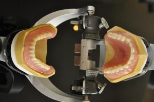 Private dentures 12