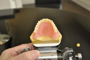 Private dentures 13