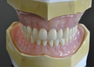 Private dentures 14