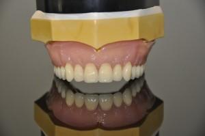 Private dentures 5