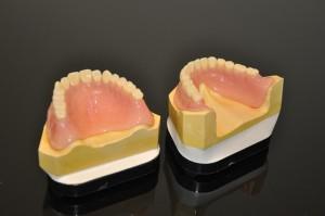 Private dentures 6