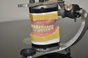 Private dentures 3