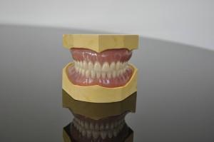 NHS Bronze dentures 1