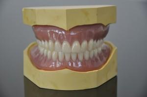 NHS Bronze dentures 2