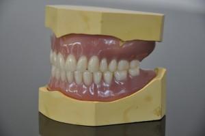 NHS Bronze dentures 3