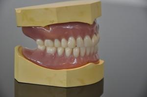 NHS Bronze dentures 4