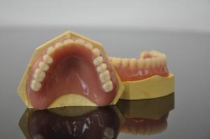 NHS Bronze dentures 5