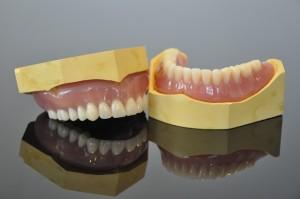 NHS Bronze dentures 7