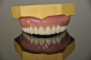 NHS Bronze dentures 9